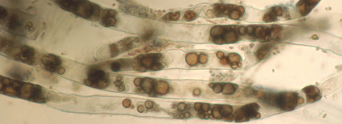 Photo: Cytoplasmic streaming in normal root hair - Image courtesy of Jim White