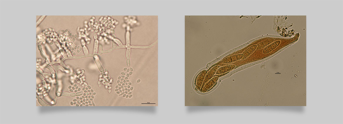 Fungal endophytes of switchgrass, fungal pathogens and their structures - Image courtesy of Ning Zhang